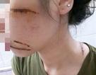 Nữ nhân viên spa bị côn đồ chém trọng thương