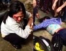 Vụ hành hung 2 phụ nữ bán tăm: Triệu tập nhiều đối tượng