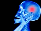 Kiện điện thoại di động gây ra u não: được 7.500$ mỗi năm