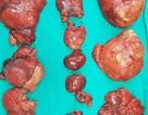 Hoảng hồn phát hiện 20 khối u mỡ trong bụng bệnh nhân