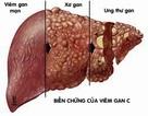 Việt Nam đạt được thoả thuận về thuốc chữa viêm gan C giá rẻ