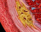 Nồng độ hoóc môn tuyến giáp có thể xác định được chứng xơ vữa động mạch