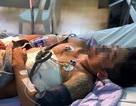 Kịp thời cứu sống người đàn ông bị đâm thủng tim
