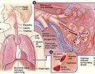 """Khó thở """"hậu phẫu"""": Coi chừng thuyên tắc phổi!"""