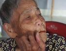 Xôn xao câu chuyện cụ bà 98 tuổi mọc răng