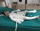 Hà Nội: Bé trai 6 tuổi bị bố dượng đốt nhà đã tử vong