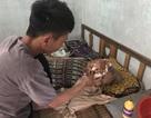 Không tiền chữa trị, người phụ nữ nghèo mang khối u lớn giữa mặt nằm chờ chết