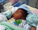 Hiếm gặp sản phụ mang khối u hơn 5kg sinh con hơn 3kg