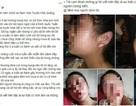 Mẹ trẻ 16 tuổi lên Facebook cầu cứu vì bị chồng bạo hành