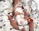 Bé sơ sinh bị dị tật tim nặng thoát chết nhờ phương pháp mới