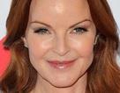7 triệu chứng của ung thư hậu môn mà diễn viên Marcia Cross đang mắc