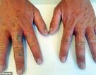 Rộp tay vì không rửa tay suốt 10 tiếng sau khi vắt nước chanh