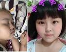 Tình cảnh đáng thương của cô bé dân tộc Sán Dìu bị ung thư máu