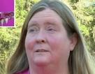 Người phụ nữ bị... kẹt răng giả trong miệng vì hóa trang Halloween!