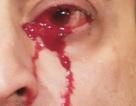 """Kì lạ người đàn ông """"khóc ra máu"""" liên tục trong… 1 giờ"""