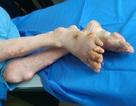 Làm sao để phòng tránh những biến chứng nguy hiểm của bệnh gút?