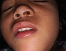 Bé 5 tuổi chịu đau đớn vì pin kẹt trong lỗ mũi suốt 4 ngày
