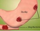 Video tư vấn: Thói quen ăn uống nào gây ung thư đường tiêu hóa?