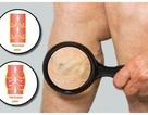 7 dấu hiệu cảnh báo bệnh suy tĩnh mạch