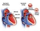 Hẹp van tim - cách giảm đau ngực, ho, khó thở, tránh suy tim