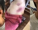 Kiên Giang: Người dân nhập viện cấp cứu sau khi bị tạm giữ tại Công an thị trấn!