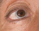 6 dấu hiệu bất thường báo bệnh tim