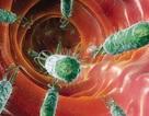 Video tư vấn: Mắc vi khuẩn HP có bị ung thư dạ dày?