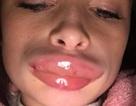 Tiêm chất làm đầy tại nhà, nữ y tá gặp họa bong tróc và sưng vều môi
