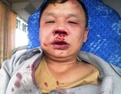Nghệ An: Một tài xế đang chạy xe bất ngờ bị côn đồ chặn đánh đến nhập viện!