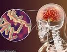 Giải mã những hiểu lầm về viêm màng não