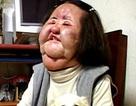 """""""Thảm hoạ thẩm mỹ xứ Hàn"""" qua đời ở tuổi 57"""