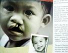 Giải pháp mới cho trẻ em nói thều thào, giọng yếu, phát âm sai vì dị tật môi vòm