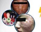 Rùng mình gương mặt như mảng cơm cháy của nữ sinh 19 tuổi sau chữa mụn tại spa