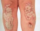 Bệnh vảy nến có lây không? Nguyên nhân gây bệnh là gì?