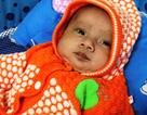 Thương bé sinh đôi chống chọi với bệnh tim bẩm sinh phức tạp