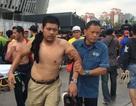 CĐV Malaysia ngất xỉu do chen lấn mua vé xem chung kết AFF Cup