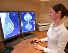 Điều trị ung thư vú bằng phương pháp xạ trị có lợi hơn có hại