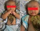 Gây hại con trẻ vì tin vào bài thuốc dân gian