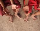 Kỳ lạ gia đình có 14 ngón chân, 12 ngón tay