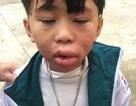 Một bé trai nghi bị ngộ độc sau khi ăn kẹo ở cổng trường