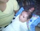 Em bé sinh ra với sừng mọc trên đầu gây sốc cho bác sĩ