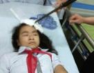 Bộ GD&ĐT yêu cầu xử lý nghiêm học sinh phi dao vào trán bạn