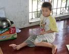 Không tiền phẫu thuật, bé 8 tuổi khổ sở với bàn chân chỉ còn... một ngón
