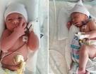 Bà mẹ sinh con ngay trên xe cấp cứu mới biết mình có thai