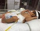 Hy hữu: Bé sơ sinh 2 ngày tuổi bị vỡ dạ dày