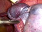 Cảnh giác những cơn đau bụng âm ỉ ở bé gái