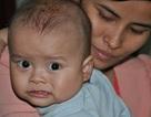 Xót xa bé 10 tháng bị u nguyên bào gan