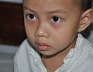 Bố chết, mẹ bỏ đi, bé 4 tuổi dân tộc Tày nguy kịch tính mạng vì viêm khớp gối