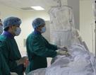 Cứu thêm nhiều người bệnh đến viện muộn nhờ can thiệp đột quỵ não bằng điện quang