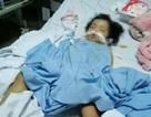 Cháu bé 20 tháng tuổi nghi bị chấn thương sọ não khi ở trường, công an vào cuộc